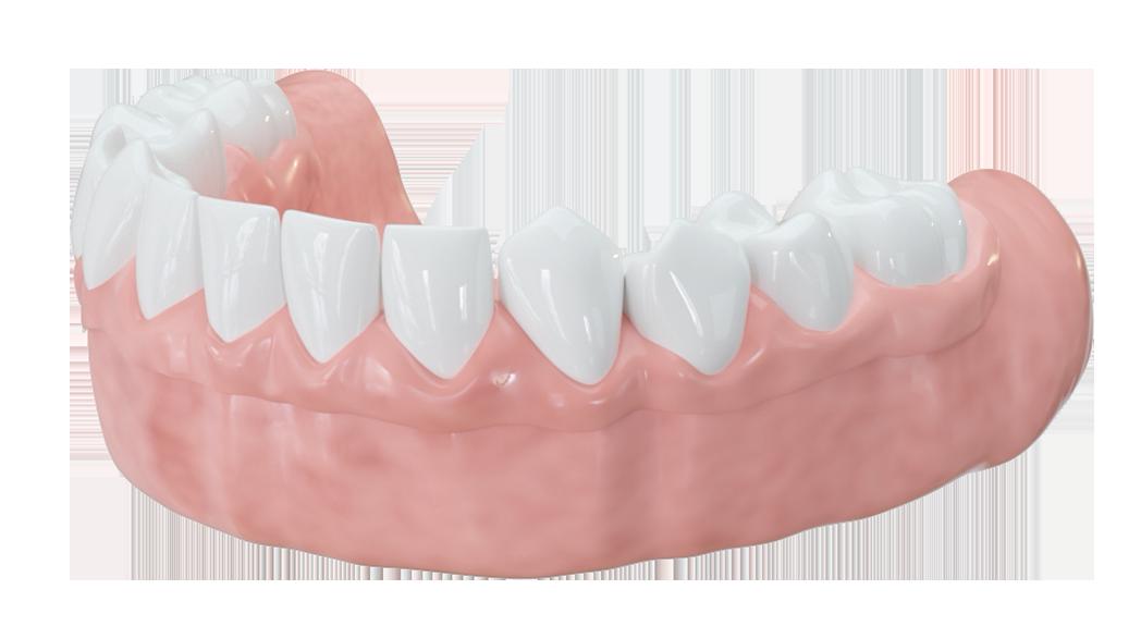 Ohne gaumenplatte zahnprothese Eine Zahnprothese